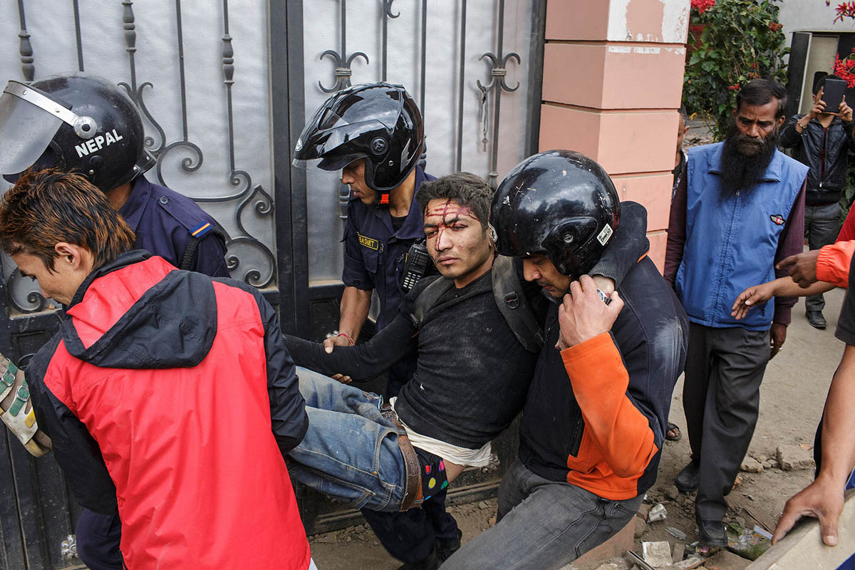 nepal_kathmandu_earthquake_victim_rescue_aid_help_emergency_health_injuried_injury